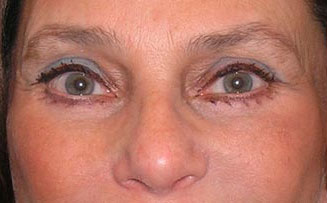 Blepharoplasty in NYC