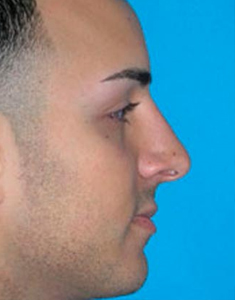 Male Rhinoplasty New York City