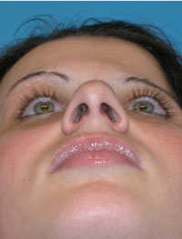 NYC Septoplasty Before and After
