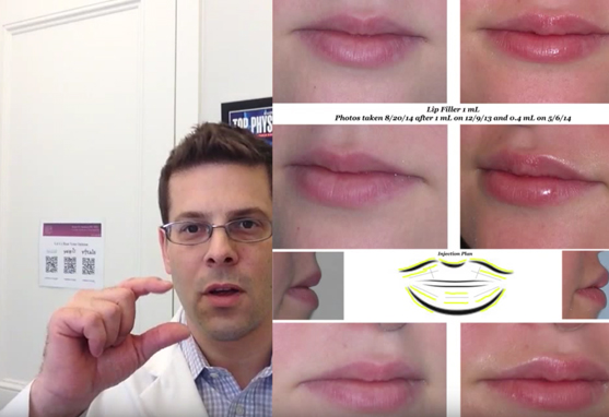 Lip Augmentation Before and After Video