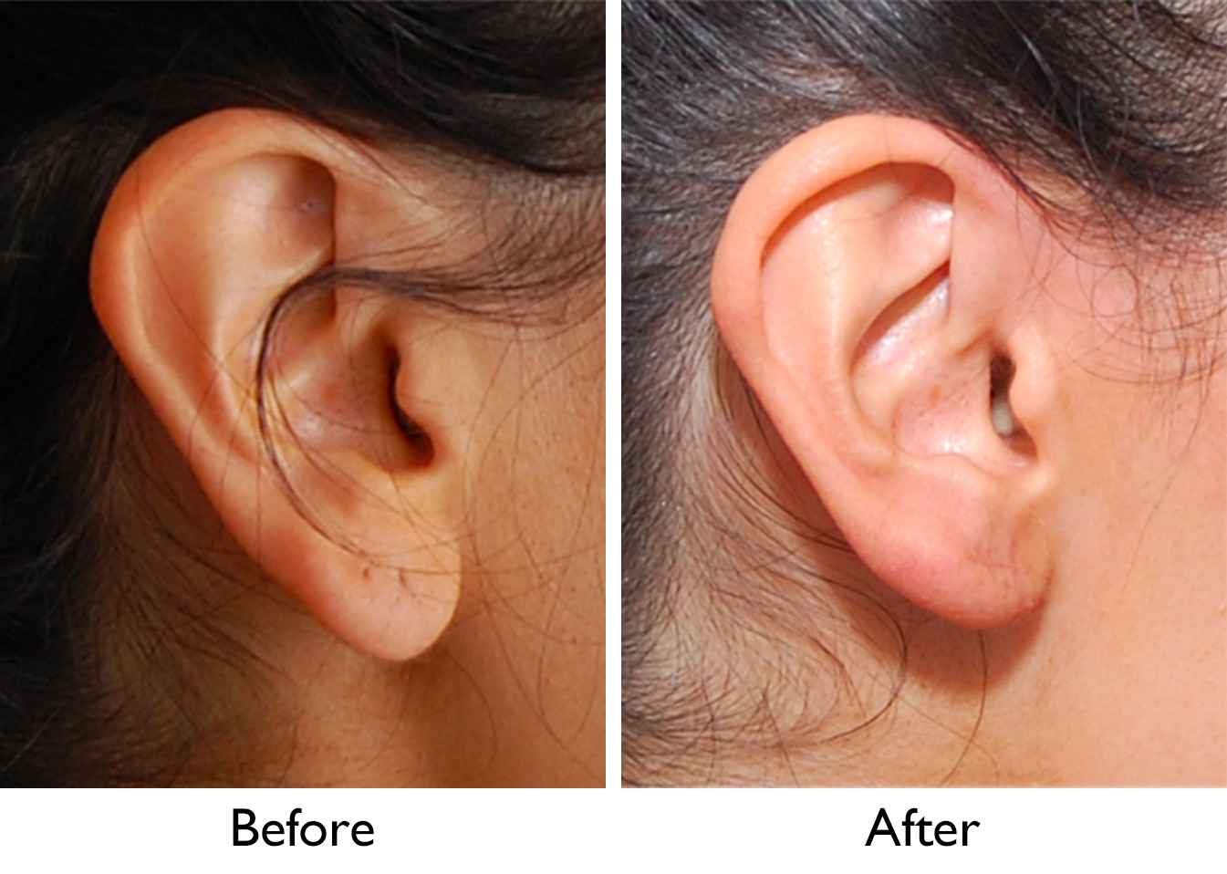 how to make your ears smaller without surgery