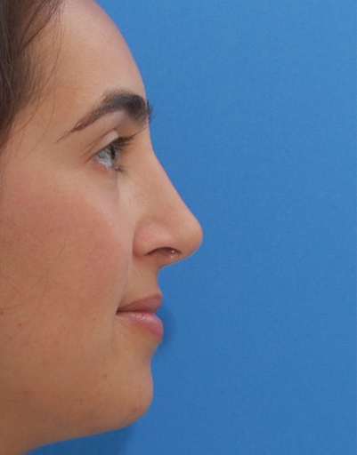 NYC Rhinoplasty Before And After