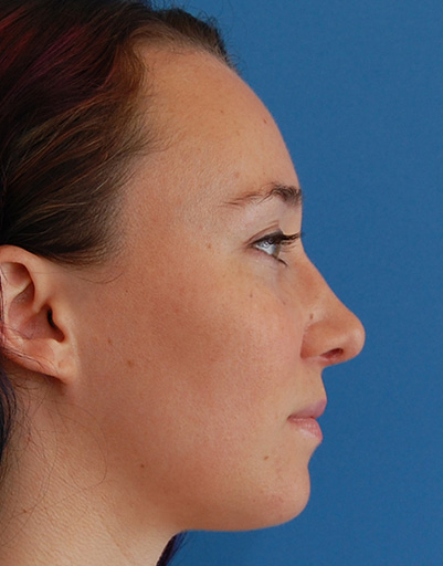Rhinoplasty NYC Gallery