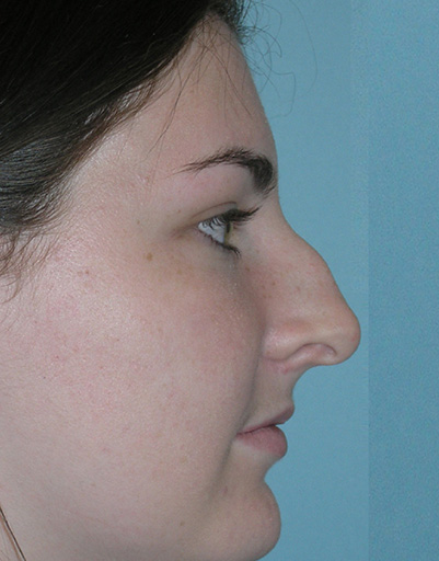 Best Nose Job NYC