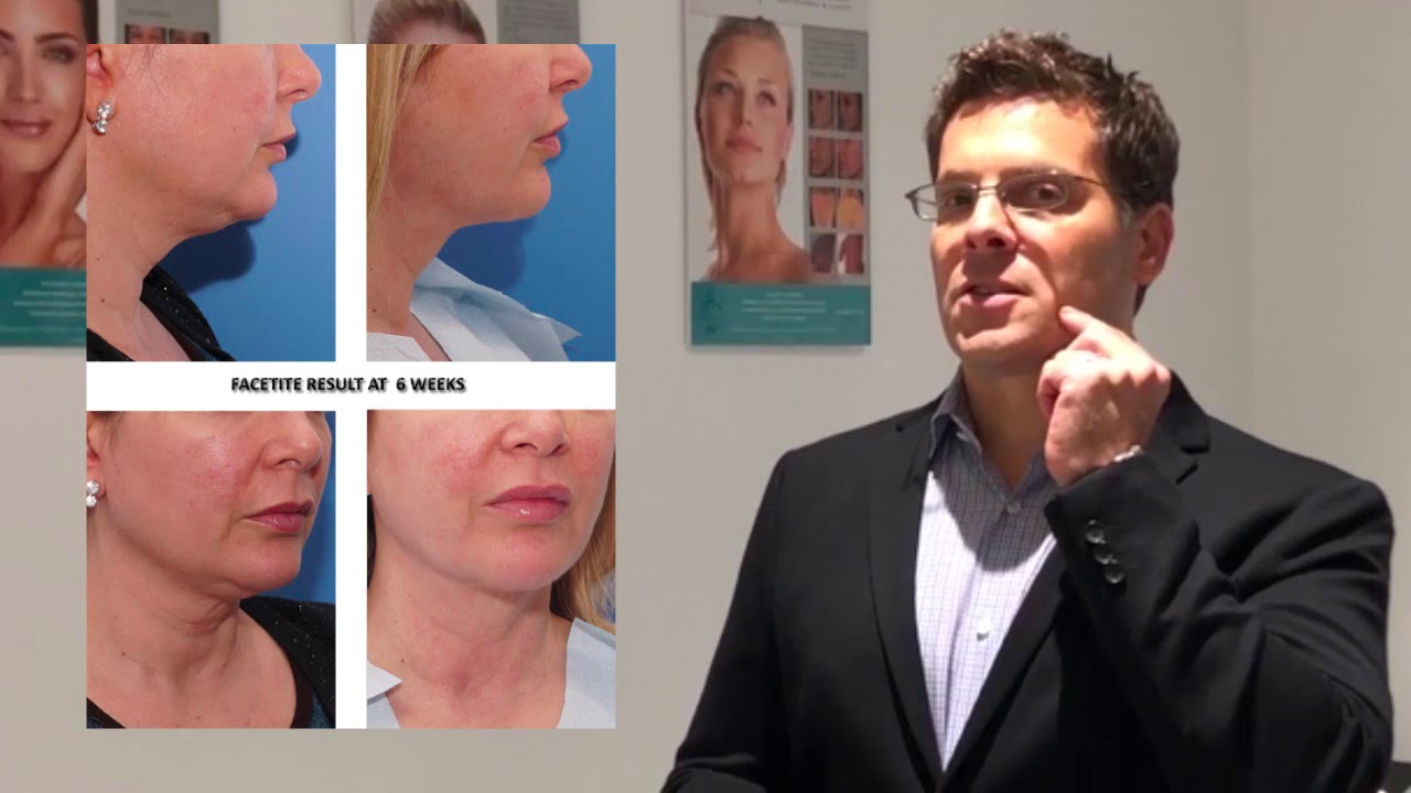 FaceTite NYC | Skin Tightening New York